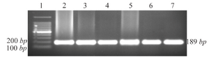 <p>Figure 1. Agarose gel electrophoresis of PCR amplified DNA fragments for genotyping of CCR5 alleles. 1: 100 <em>bp</em> DNA ladder; 2-7: wild type (CCR5/CCR5).</p>