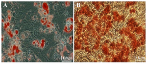 <p>Figure 3. Multilineage differentiation of BMSC, A) Adipogenic dif-ferentiation of BMSC (Oil Red O stain of lipid droplets). B) Osteo-genic differentiation of BMSC; (Alizarin Red Stain for calcium). Scale bars 10 <em>μm.</em></p>