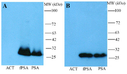<p>Figure 2. Western blot analysis of polyclonal rabbit anti-fPSA. Non-reduced (A) and reduced (B) antichymotrypsin (ACT), fPSA and total PSA (90% PSA-ACT, 10% fPSA) proteins were subjected to SDS-PAGE, transferred to a nitrocellulose membrane and reveled with HRR conjugated rabbit anti-fPSA.</p>