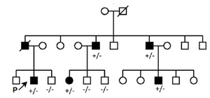 <p>Figure 2. Pedigree related to the family with clinically affected CFEOM (1A). (+/-): Affected, (-/-): Wild type.</p>