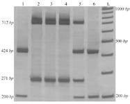 <p>Figure 2. Results of T-ARMS-PCR of <em>ACE</em> polymorphisms (rs4043 and rs4343). Lanes 1 and 6: DDGG genotype, lanes 2, 3 and 4: IIAA genotype and lane 5: DIAG (IA/DG) genotype.</p>