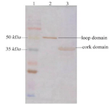 <p>Figure 4. Western blot analysis of the recombinant loop and cork domains from BauA. Lane 1: molecular weight marker, Lane 2: purified loop domain, Lane 3: purified cork domain</p>