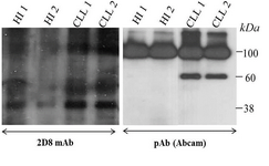 <p>Figure 6. Western blot shows the expression of sortilin in lysate of CLL and healthy PBMCs detected by either 2D8 mAb (left) or anti-sortilin pAb (Abcam, right). HI: healthy individual.</p>