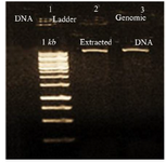 <p>Figure 1. Electrophoresis of extracted <em>L. tropica</em> DNA, lane 1: DNA 1 <em>kb</em>, lane 2, 3: extracted <em>L. tropica</em> DNA.</p>