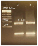 <p>Figure 3. Amplification products of&nbsp; <em>L. tropica</em> V-ATPase subunit F on 2% agarose gel electrophoresis stained with ethidium bromide. Lane 1: DNA ladder 1 <em>kb</em>, lane 2: V-ATPase subunit F amplification product, lane 3: V-ATPase subunit F- cDNA amplification product.</p>