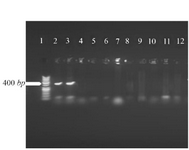 <p>Figure 6. Sequencing of V-ATPase subunit-F gene in&nbsp; <em>L.tropica.</em></p>