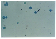 Figure 4. The effect of co-administration of magnetite nanoparticles in edible paraffin oil and doxorubicin (see sample 2 in Table 1) against MDA-MD-468 cells in the presence of an alternate magnetic field for 30 min. All cells were dead (stained with trypan blue)