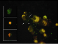 Figure 5. Apoptotic forms of OVCAR3 cell line observed by fluorescence microscope. OVCAR3 cell line was stained with annexinV-FITC/PI. Arrows show the plasma membrane asymmetry in early apoptotic cells. Boxes show different stage of apoptosis such as early and late / already dead cells
