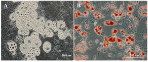 Figure 4. A) Fatty acid droplets after culture in adipogenic medium (phase-contrast image); B) Fatty acid droplets after culture in adipogenic medium (oil red staining)