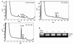 Figure 2. HPLC separation and electropherogram of The PCR products from the ErbB2 oncogene and the interferon gamma gene (INFγ) for the detection of the ErbB2 gene amplification. A) Chromatograms showing the results for normal DNA (control), DNA from cancerous breast (test) and BT-474 breast carcinoma cell line (high copy control); B)  Lane 1 is high copy control, lanes 2 and 3 are DNA from primary breast carcinoma and lane 4 is normal breast tissue