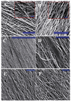 Figure 1. PLLA/PCL hybrid nanofibers, A) without gelatin coating; B) with gelatin coating; C, D) show ADSCs cultured on aligned PLLA/PCL; the orientation of cells is parallel to the scaffold fiber even after just 1 day of cell seeding. E) ADSCs on aligned PLLA/ PCL without gelatin coating; F) ADSCs on aligned PLLA/PCL with gelatin coating. Scale bars are 100 µm in main pictures and 10 µm in the small boxes (A, B), 1 mm (C) and 100 µm (D, E, F).