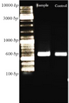 <p>Figure 3. Confirmation of ligation CHAPk in T7Select vector using PCR reaction. After electrophoresis, the PCR product and positive control were located at 600 <em>bp</em>.</p>