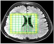 <p>Figure 2. A sample of MRI image in SIVIC software in which the border of the tumor region at the time of imaging is determined as yellow box. Each green tagged square represents a voxel. The amount of each metabolite corresponding to each voxel is extracted in subsequent steps.</p>