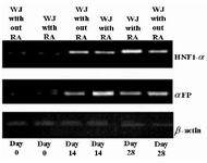 Figure 4. Expression pattern of hepatocyte-like cells specific markers. It is clear from the figure that the highest expression level for αFP was at day 14, but for HNF1-α at day 28. RA had the profound effects on expression levels of the two discussed markers. We can also see that the rates for cells at day 0 were not significant. WJ= Wharton's jelly-mesenchymal stem cells; αFP=alpha-fetoprotein; and HNF-1α=hepatocyte nuclear factor-1α.