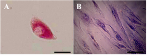 Figure 5. Periodic Acid-Schiff (PAS) staining for glycogen analysis. A) In the presence of Retinoic Acid (RA), glycogen storage in hepa-tocyte-like cells was at the high level but B) in the absence of this factor no storages was detected (Scale bar for A=30 µm, and for B=10 µm).