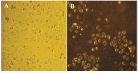 <p>Figure 8. Bright field image of HeLa cancer cells incubated with GNPs. A) Dark-field image of a live cell after treatment (∼48 <em>hr</em>) with GNPs in cancer cells; B) Cell surface scatters yellow light due to the GNPs uptake in the visible region.</p>