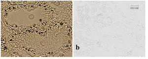 Figure 5. BrdU staining was performed with anti-BrdU antibody following spermatogonial stem cell transplantation