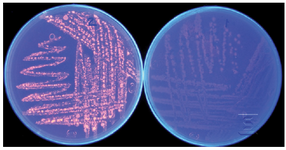 <p>Figure 1. Lipolytic activity detection of <em>Bacillus sp. ZR-5 </em>with Rhod-amin B plate assay test. Orange fluorescent halos around bacterial colonies before (right) and after UV irradiation (left) demonstrate the lipase activity of this strain</p>