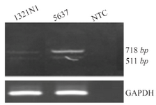 <p>Figure 2. A) RT-PCR analysis of OCT4B3. Using primer set B2S/RB2 we detected a 511 bp PCR product in the 5637 and 1321 cell lines which was corresponded to the OCT4B3 transcript. The 718<em> bp</em> fragment was considered to be the OCT4B2 variant. GAPDH was used as internal control for RT-PCR and NTC is non-template control.</p>