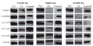 <p>Figure 5. Western analysis of differentiated cells in different concentrations of LiCL for TH, Tuj1 and β-catenin markers in 4, 8 and 12 days.  β-actin was used as a control marker.</p>