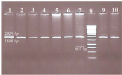 <p>Figure 1. Representative samples tested for common α-globin gene deletions.</p>