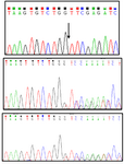 <p>Figure 2. Sanger sequencing chromatograms showing the nucleotide deletion found in the patient in homozygous (Top panel; the arrow represents deletion of G between G and T) and in her parents in heterozygous states. Middle and bottom panels show her father and her mother sequences, respectively.</p>