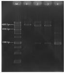 <p>Figure 1. Agarose gel electrophoresis analysis of recombinant pET28a/<em>pilQ</em><sub>1138-2118</sub> with restriction enzyme digestion. Lane M; DNA marker (1 <em>kb</em>), Lane 1; mono-digestion of the pET28a/<em>pilQ</em><sub>1138-2118 </sub>vector with BamHI. One expected fragment was observed on the gel (~6350 <em>bp</em> band). Lane 2 and 3; BamHI/HindIII double digested the recombinant vector with BamHI and HindIII buffer, respectively. Two expected fragments from double digestion were observed on the gel (~5369 and 981 <em>bp</em> bands). Lane 4; the optimized PCR product of the <em>pilQ</em><sub>1138-2118</sub> gene (~ 961 <em>bp</em> band).</p>