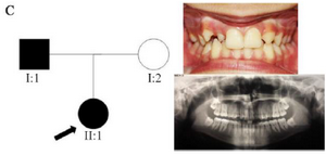 <p>Figure 3. Pedigree of C family. Panoramic radiograph and the clinical photograph of the proband.</p>