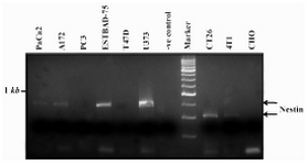 Figure 3. Expression of nestin in different cell lines by RT-PCR. The standard marker is DNA molecular weight marker XVI from Roche. The negative (-ve) control was PCR reaction without any template