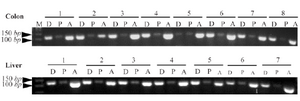 <p>Figure 1. Agarose gel electrophoresis of RT-PCR products of <em>DNMT3b</em>, <em>PPAR</em><em>α</em> and <em>β</em><em>-actin</em> gene in the colon and liver tissues of rats. The presence of PCR products with the expected lengths of about 107 <em>bp</em> for <em>DNMT3b</em>, 106 <em>bp</em> for <em>PPAR</em><em>α</em> and 102 <em>bp</em> for <em>β</em><em>-actin</em> was confirmed. M, DNA marker; D, <em>DNMT3b</em>; P, <em>PPAR</em><em>α</em>; A: <em>β</em><em>-actin</em>.</p>