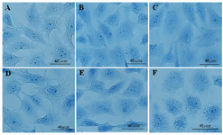 <p>Figure 1. The effects of different doses of <em>Anethum graveolens L.</em> (dill) seed aqueous extract on chromatin condensation of cultured granulosa cells, aniline blue staining, scale bar=40 <em>&micro;m</em>. A) Control culture, B) 10 <em>&mu;g/ml</em>, C) 50 <em>&mu;g/ml</em>, D) 100 <em>&mu;g/ml</em>, E) 500 <em>&mu;g/ml</em> and F) 1000 <em>&mu;g/ml</em> of <em>Anethum graveolens L.</em> extract treated culture.</p>