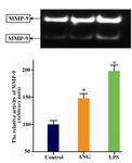Figure 2. Zymographic determination of MMP-9 in culture media of U-937 cells. 1×106 serum starved cells were seeded in 12-well plates and treated either with LPS (100 ng/ml) or ANG (100 nmolar) for 24 hr. A representative zymogram has been shown (upper panel). Data are presented relative to control as mean±SEM (n=4) following densitometry. * p<0.05 vs. control. ANG= Angiotensin II, LPS = Lipopolysaccharide