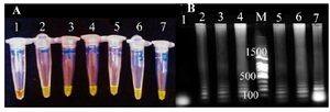 <p>Figure 1. The detemination of LAMP products. A) visual detection after addition of SYBR green dye without UV illumination. Tube 1: negatine control, tube 2: positive control, tube 3, 4, 5, 6 and 7: LAMP amplification products from positive urine samples. B) Analysis on 1% agarose gel electrophoresis. lane 1: negatine control, lane 2: positive control, lane 3, 4, 5, 6 and 7: LAMP amplification products from positive urine samples., M: 100 <em>bp</em> DNA ladder.</p>