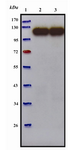 Figure 5. Western blot analysis of purified anti-P110 antibody. Bacterial cell lysate from M.genitalium G-37 was prepared by sonication and subjected to Western blot. Polyclonal anti-P110 antibody detected a specific band of 110 kDa. Lane 1) Protein marker (Fermentas). Lane 2) Reducing conditions. Lane 3) Non-reducing conditions