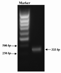 Figure 1. PCR amplification of GRA5. A pair of specific primer was designed and used to amplify GRA5 gene from genome of T.gondii RH strain. PCR product was analyzed by 1% gel agarose electrophoresis