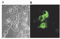 Figure 4. Immunofluorescence expression analysis of GRA5 in HEK 293-T cells transfected with pcDNA3.1 (A) or pGRA5 (B). At 72 hr post-transfection, the cells were fixed and immunofluorescence staining was performed using a mAb anti-GRA5 followed by FITC-conjugated anti-mouse IgG. Fluorescent images were examined