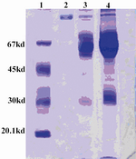Figure 1. Evaluation of plasminogen purification by SDS-PAGE (Left to right): 