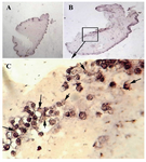 Figure 8. Effect of perfusion bioreactor culture on collagen type II. The control A) exhibited less immunostaining for type II collagen then bioreactor group B, C) (magnification of A, B are 5× and C 20×)